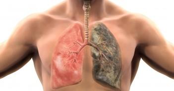Folgen von Rauchen