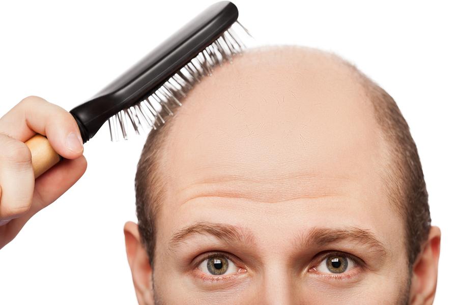 Haarausfall Haare Statt Glatze Was Hilft Wirklich
