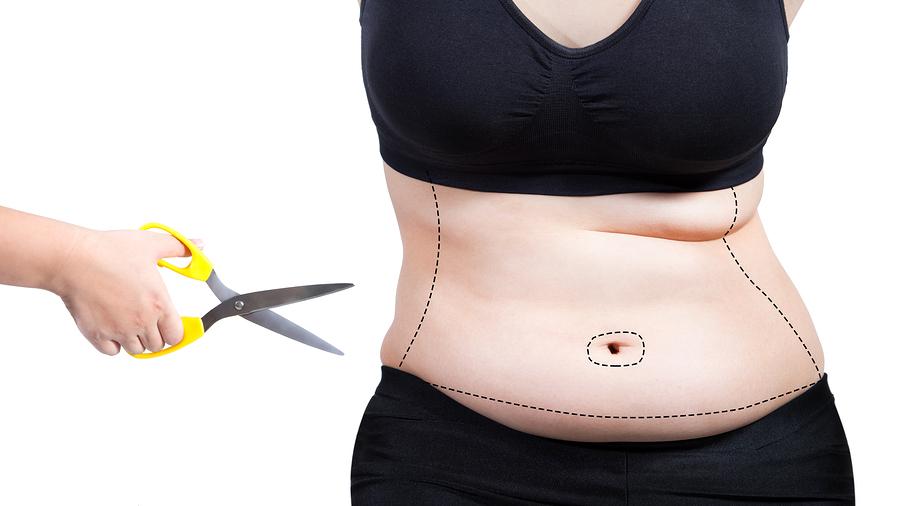 Gegen zu viel Haut hilft eine Bauchdeckenstraffung