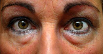 Lidstraffung, um überschüssige Augenhaut zu entfernen