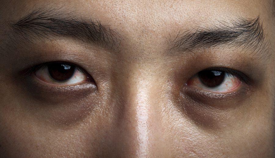 Schlaflosigkeit führt zu dauerhaften roten Augenringe