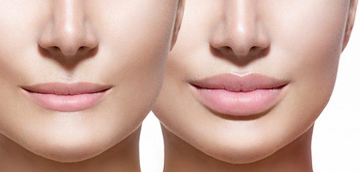 Vor und nach der Lippenvergrößerung