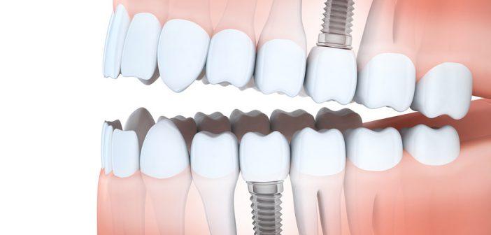 Ein Zahnimplantat ist eine künstliche Zahnwurzel. (c)Bigstockphoto.com/142646249/Vladru