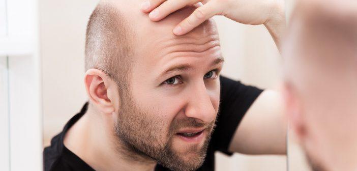 Geheimratsecken beim Mann: Ein lösbares Problem